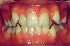 antonia-before-teethfront