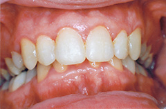 david-after-teethfront