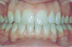 elizabeth-after-teethfront