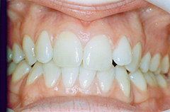 elizabeth-before-teethfront