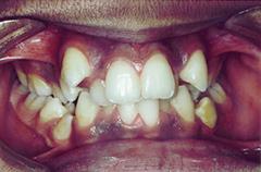 hassan-before-teethfront