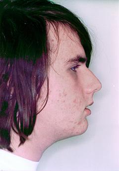 iain-after-facialprofile