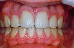 iain-after-teethfront