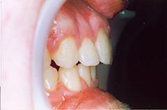 iain-after-teethprofile