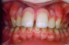 iain-before-teethfront
