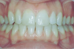 invisaling-example-1-teeth-after
