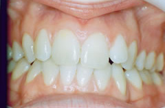 invisaling-example-1-teeth-before