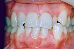 janet-before-teethfront