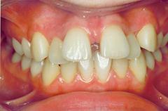 joanne-before-teethfront