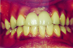 krishan-after-teethfront