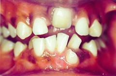 krishan-before-teethfront