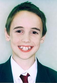 michael-before-facialfront