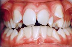 michael-before-teethfront