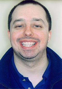 patient1-after-facialfront