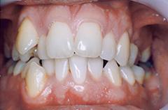 patient1-before-teethfront