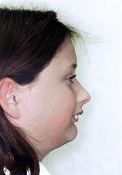 patient2-before-facialprofile