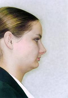 serena-after-facialprofile