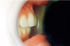 serena-after-teethprofile