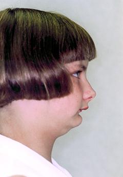 serena-before-facialprofile