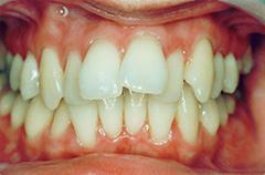 victoria-before-teethfront