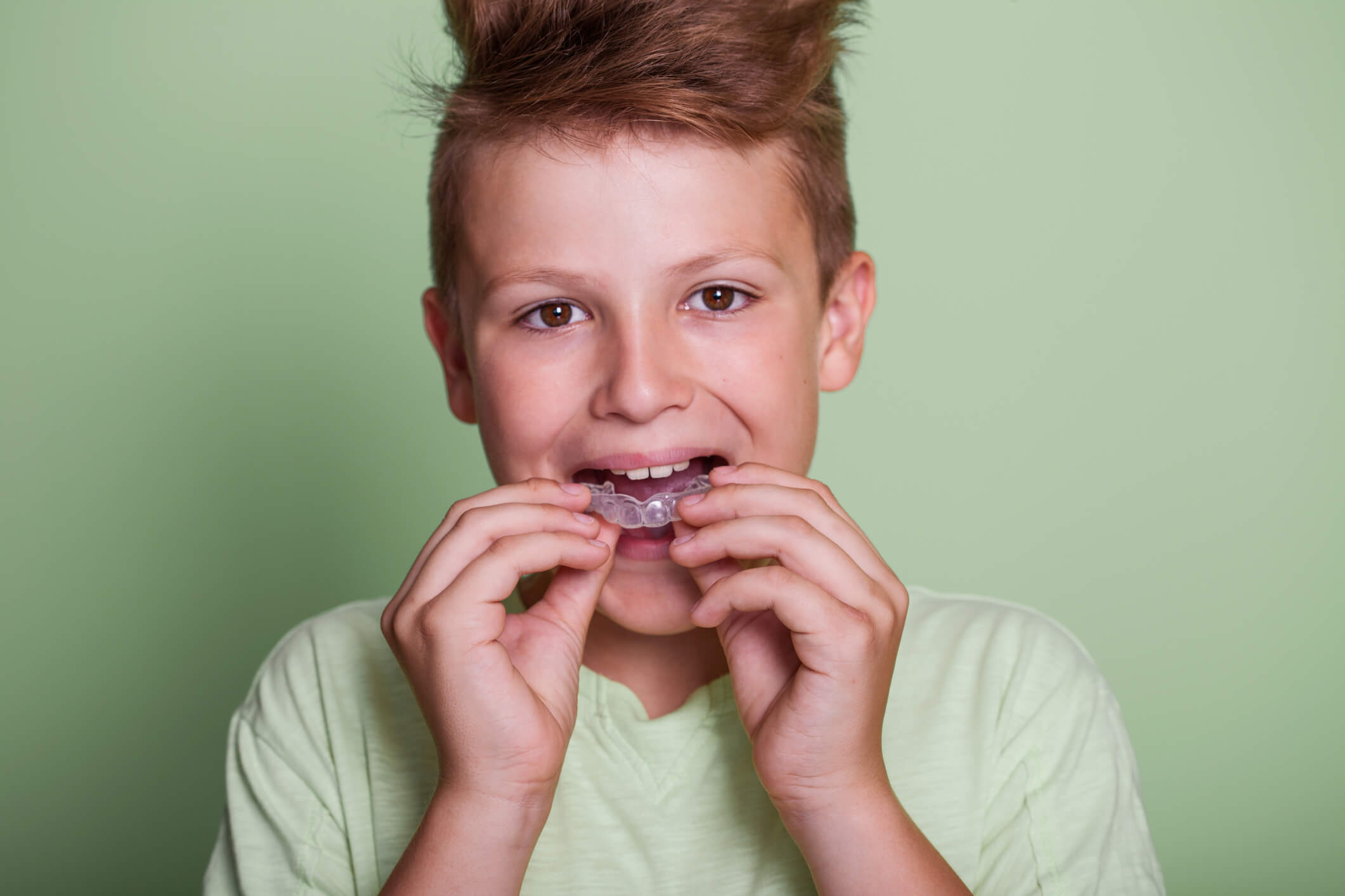 Should my child have a custom-fitted mouthguard for sports?